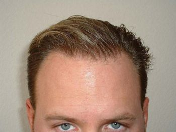 after-7-month-wet-hairline-2