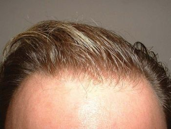 after-7-month-wet-hairline-zoom
