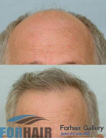 before and after hairline