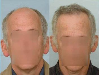 4-patient-esh-before-after-front2