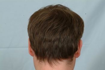 after 11 month dry hair donor area