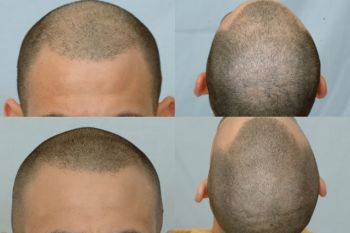 after-placement-of-1600-grafts-2