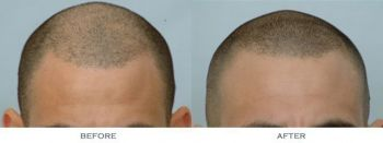 before-and-after-1600-grafts-front-comparison