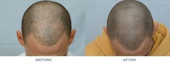 before-and-after-1600-grafts-top-comparison