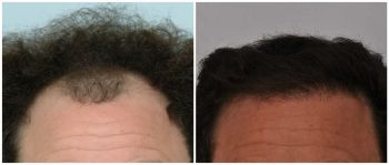 patient-bba-before-after-front
