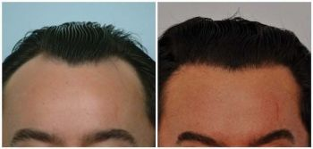 patient-jaa-before-after-comp-front
