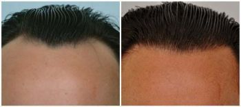 patient-jaa-before-after-comp-front2