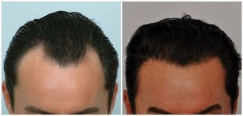 patient-jaa-before-after-comp-top