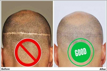 How to Avoid and Treat Hair Transplant Scars?