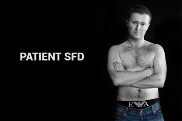 Hair Transplant Results - Patient SFD