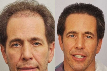 How to Achieve Great Hair Transplant Results with Small Sessions?